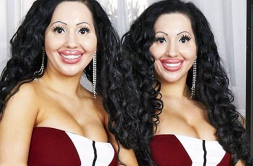 Австралийские сестры потратили 250 000 долларов ради идентичного преображения. А как они выглядели ДО