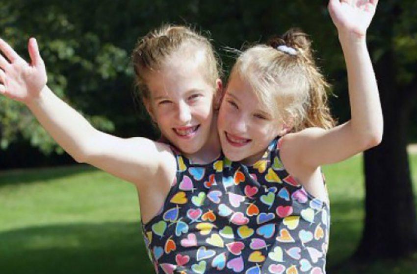 История сиамских близнецов։ Как живут и чем занимаются сёстры Хенсел?