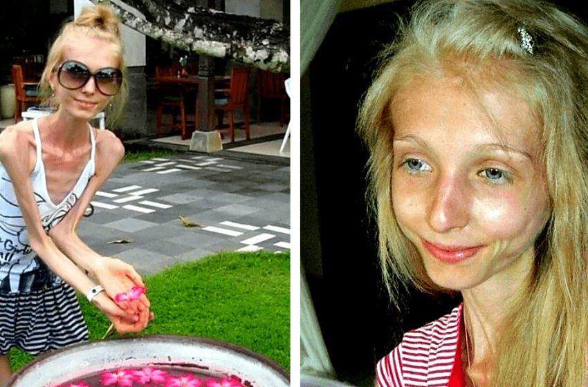 «До и после анорексии»: как выглядит девушка, которая 10 лет назад обратилась за помощью в «Пусть говорят»