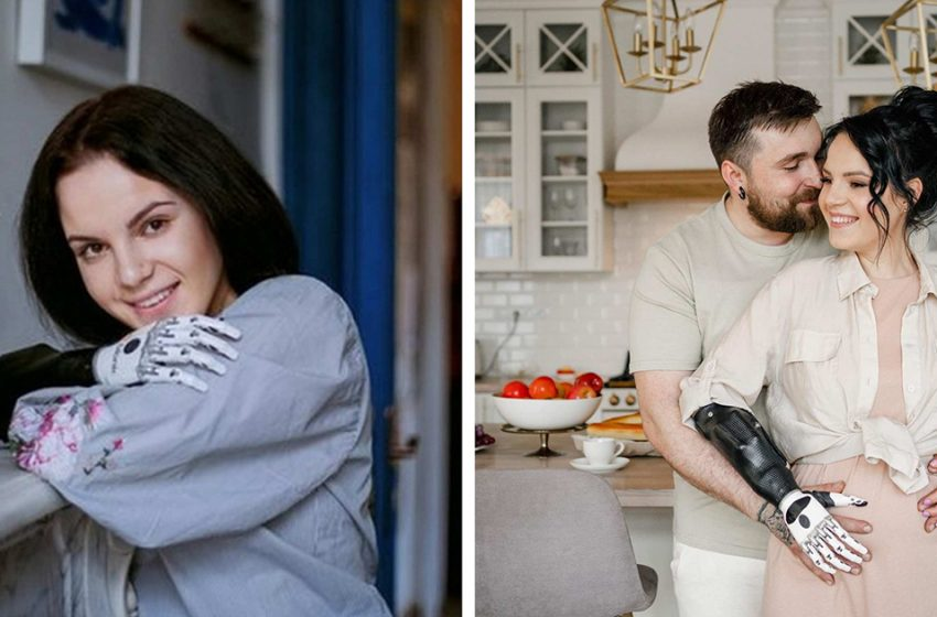 «Мама-трансформер»: Маргарита Грачева, которой муж отрубил руки, ждет ребенка от нового мужа