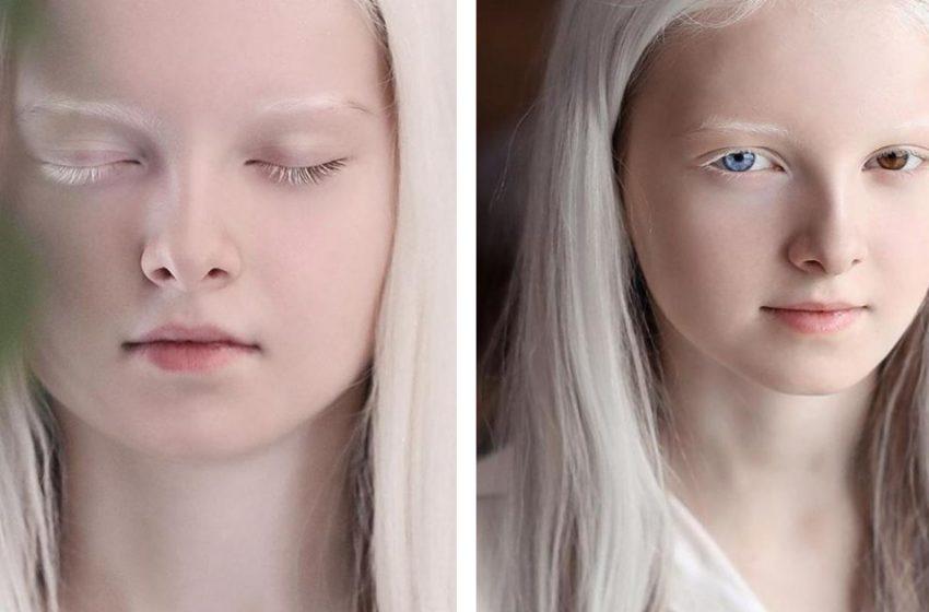 «Она как с другой планеты»: чеченка-альбинос восхитила пользователей Сети своей красотой